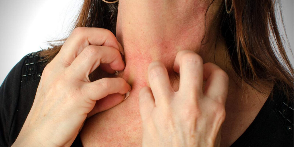 Allergic to Metals? Be Cautious Around These Items Feature Image