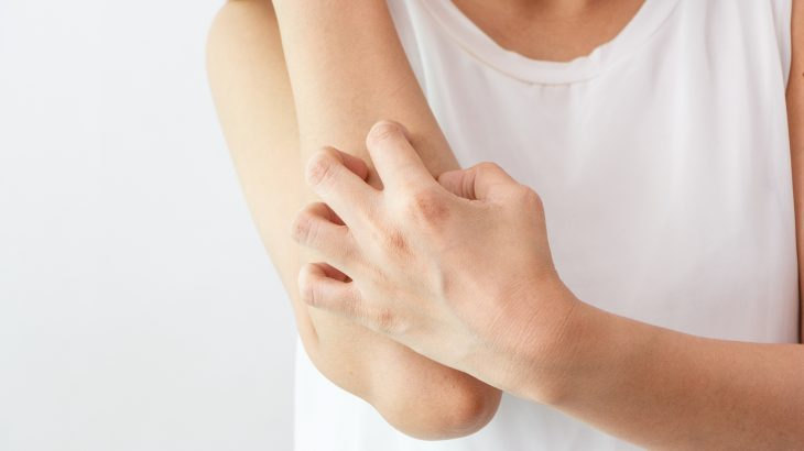 Tips For Managing Eczema Flares in Winter Feature Image