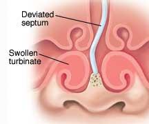 Sinus Diagram Deviated Septum