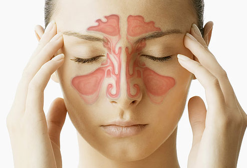 What You Were Never Told About Sinus Infections Feature Image